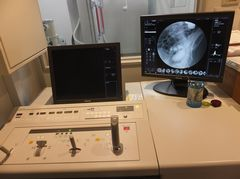 据置型デジタル式汎用X線透視診断装置